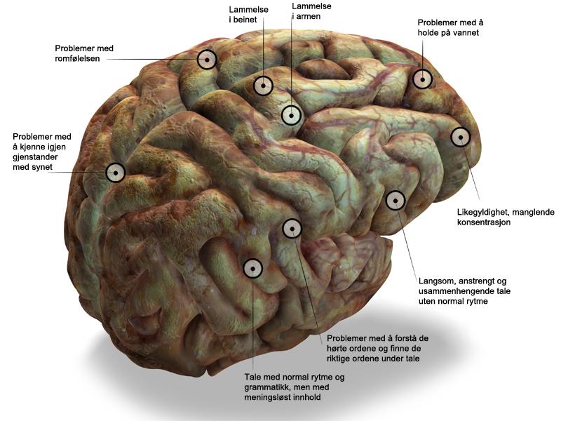 Illustrasjon av hjerne med markering og tekst om hvor i hjernen ulike symptomer oppstår